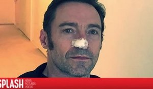 Hugh Jackman attire l'attention sur la prévention du cancer de la peau