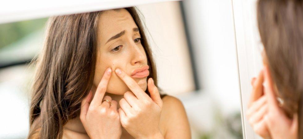 """Résultat de recherche d'images pour """"acné pollution"""""""