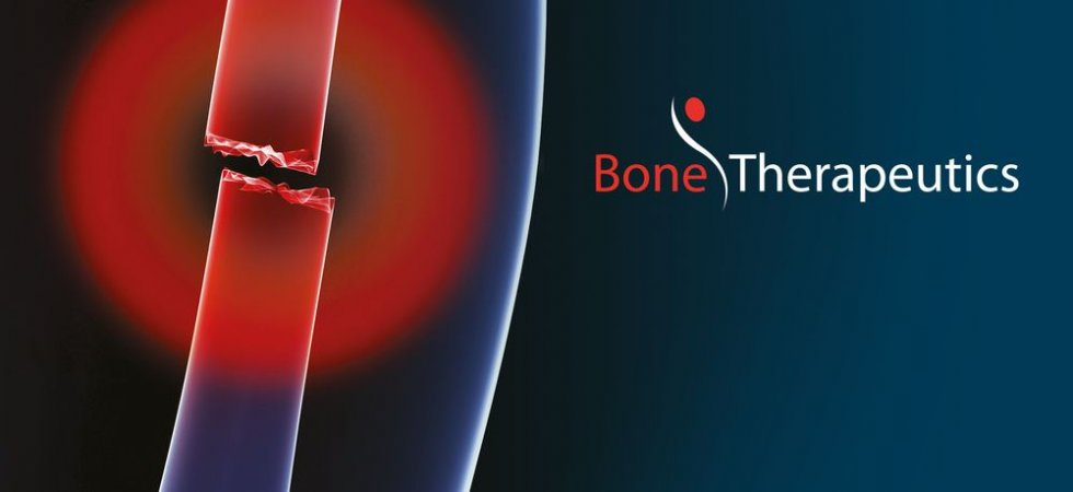 Bone Therapeutics : +22%